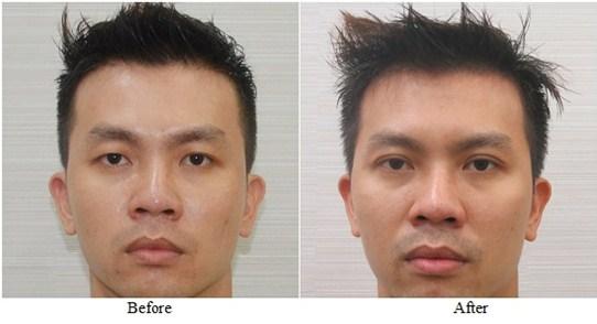 Kết quả cắt mắt 2 mí cho nam tại BVTM Á Âu