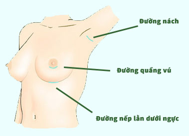nang-nguc-don-mong-hieu-qua-2