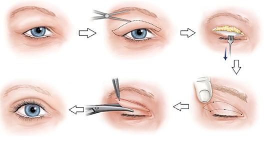 chữa trị sụp mí mắt