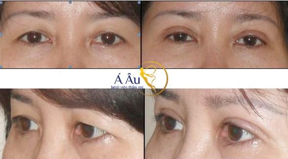 trước và sau cắt mắt 2 mí