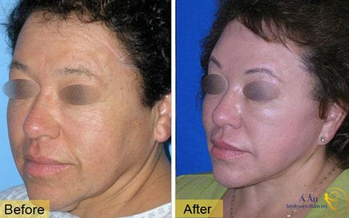Căng da, nâng cơ chảy xệ toàn bộ khuôn mặt