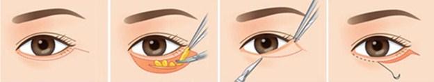Quy trình cắt mí mắt dưới đẹp và an toàn