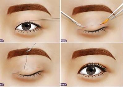 Kỹ thuật cắt mí mắt giảm sưng đau, nhanh hồi phục
