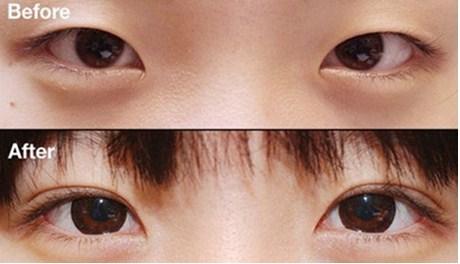 Kết quả cắt mí mắt an toàn đẹp tự nhiên.(*)
