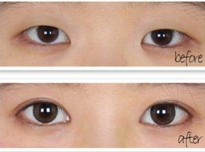 Cắt mí mắt với kỹ thuật hiện đại giúp giảm sưng, đau, hoàn thiện đôi mắt nhanh chóng