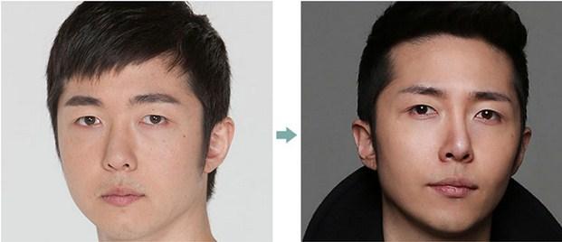 Kết quả cắt mắt 2 mí nam