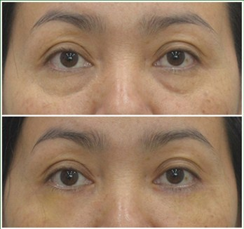 Kết quả cắt mí mắt dưới tại bệnh viện Á Âu