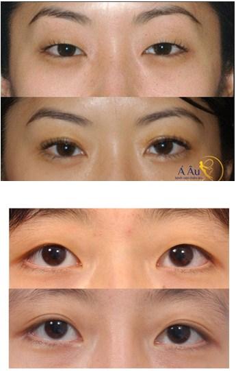 Kết quả cắt mí mắt đẹp tự nhiên an toàn tại bệnh viện