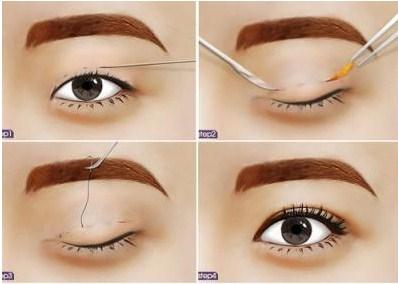 Phương pháp cắt mắt 2 mí không sưng đau