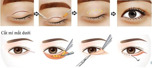 Quy trình cắt mắt 2 mí an toàn tại bệnh viện