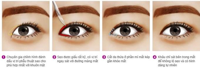 Quy trình cắt mắt 2 mí to đẹp tự nhiên