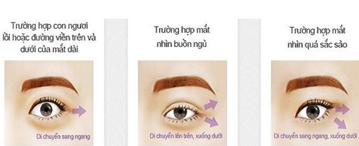 cắt mắt minh họa