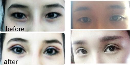 Khách hàng cắt mí mắt đẹp tự nhiên(*)