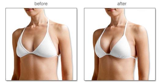 Kết quả nâng ngực đẹp tự nhiên an toàn tại bệnh viện