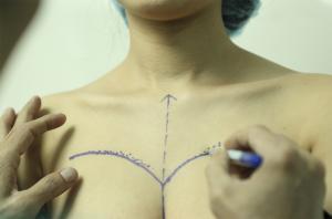 nâng ngực nội soi 1