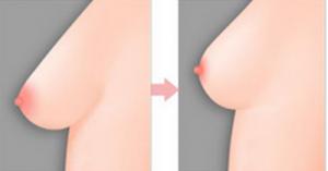 nâng ngực túi gel giọt nước 1
