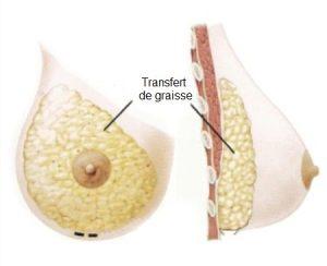 Ưu và nhược điểm của nâng ngực bằng mỡ tự thân