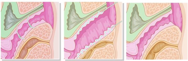 Hiệu quả đầy khít ống âm đạo từ trong ra ngoài sau khi được cấy chỉ G-silk trực tiếp tại 2 bên thành âm đạo