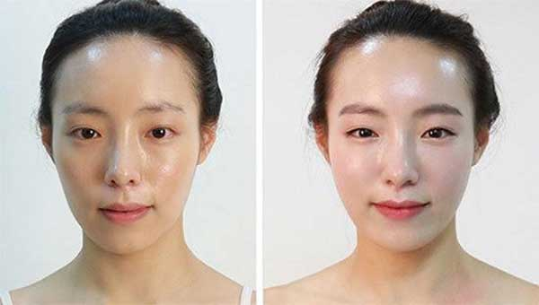 Hình ảnh khách hàng trước và sau làm đầy hõm má bằng mô mô mỡ nguyên bào (*)