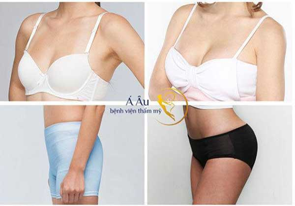 Hình ảnh khách hàng trước và sau làm nâng ngực độn mông bằng mô mô mỡ nguyên bào (*)