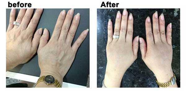 Hình ảnh khách hàng trước và sau làm đầy bàn tay bằng mô mô mỡ nguyên bào (*)