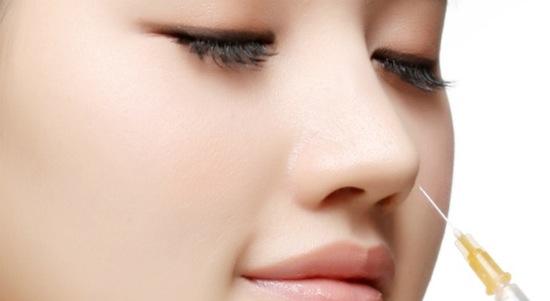 Nâng mũi bằng chất làm đầy   nâng mũi bằng filler   nâng mũi bằng chỉ