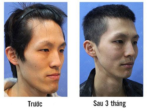 Hình ảnh kết quả thực hiện của khách hàng(*)