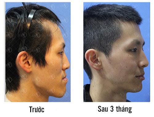 Sự thay đổi của anh Hiệp trước và sau khi phẫu thuật gương mặt với Dr Min(*)