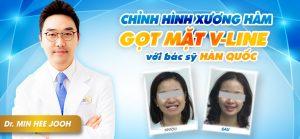 1 Banner ham mat_thang 08_web
