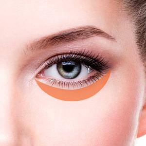 cách điều trị bọng mắt