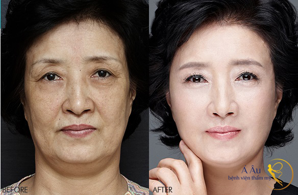 stemcell-before-after-1
