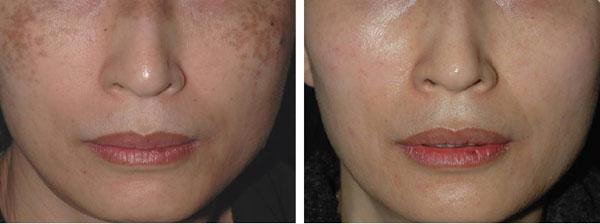Loại bỏ hắc sắc tố gây nám da với siêu vi điểm tế bào tự thân (*)