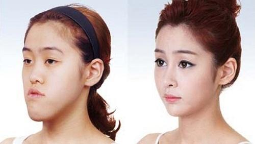 Bạn có thấy sự khác biệt trên khuôn mặt trước và sau khi tiến hành phẩu thuật chỉnh hàm