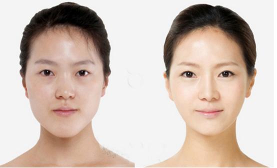 giải phẫu hàm mặt