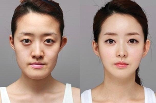Những lý do nên chọn gọt cằm V-line Hàn Quốc