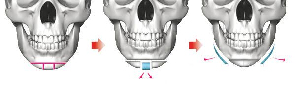 Mô hình phẫu thuật khuôn mặt trái xoan