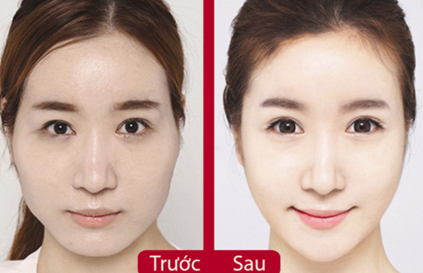 Phẫu thuật hạ gò má theo công nghệ Hàn Quốc