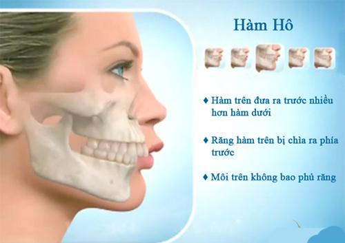 Thế nào là hàm bị hô