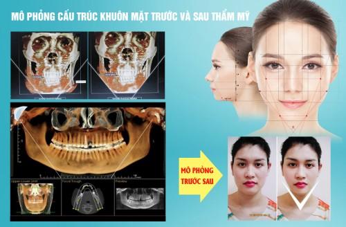 phẫu thuật gọt mặt