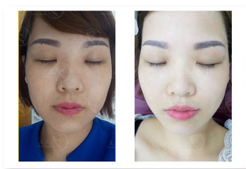before-after-tan-nhang-01