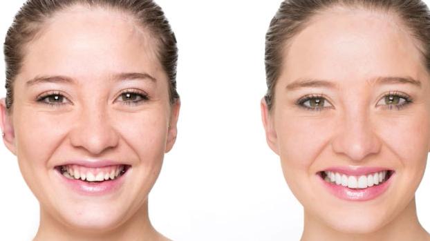 Chữa cười hở lợi như thế nào?