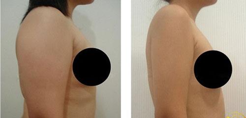 Vùng bắp tay giảm từ 5-7 cm chỉ sau 1 lần