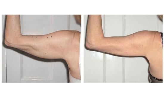 Giảm mỡ cánh tay hiệu quả