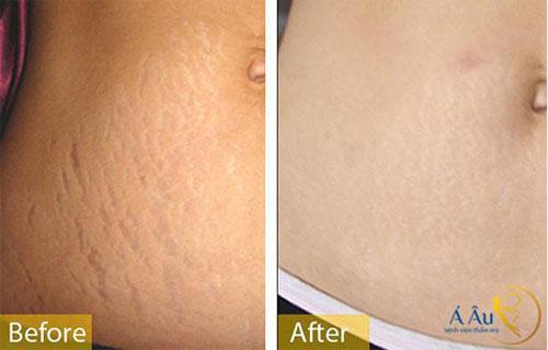 trị rạn da bụng sau sinh 8