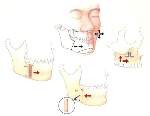 phẫu thuật gọt hàm