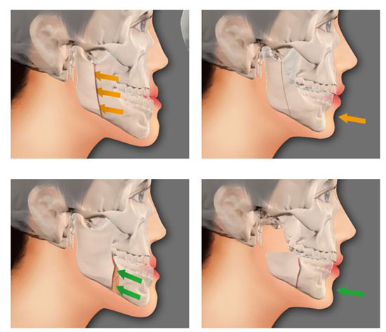 phẫu thuật xương hàm