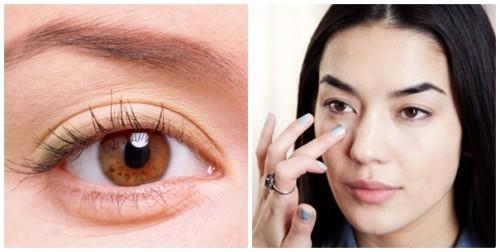 phẫu thuật lấy mỡ mí mắt dưới