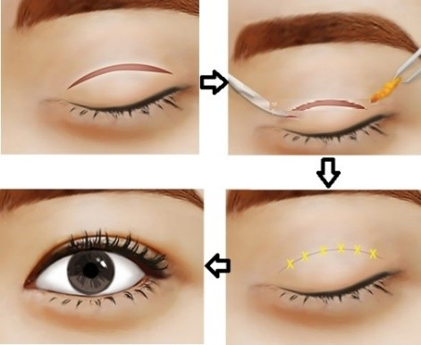 phẫu thuật thẩm mỹ mắt