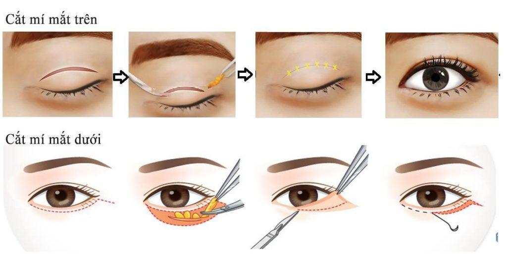 phẫu thuật thẩm mỹ mí mắt