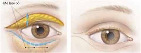 lấy mỡ thừa mí mắt dưới